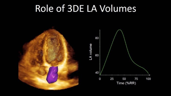 Role of 3DE LA Volumes