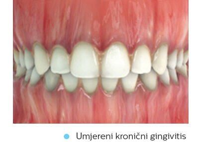 moderate-chronic-gingivitis
