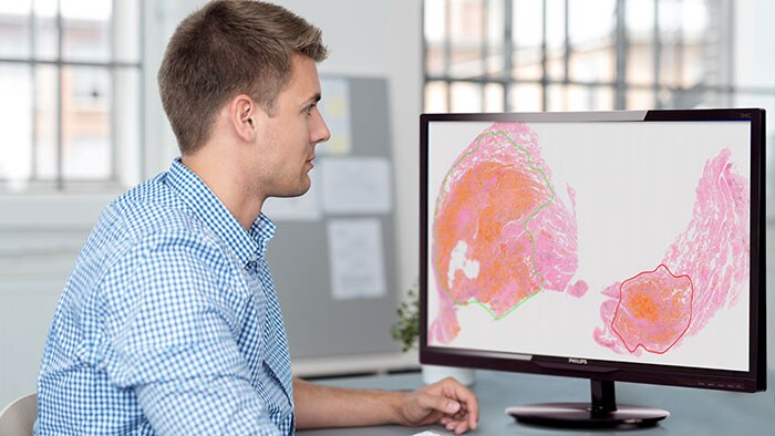 Philips showcases digital pathology system for clinical use and advanced imaging analytics to transform pathology services at USCAP 2018